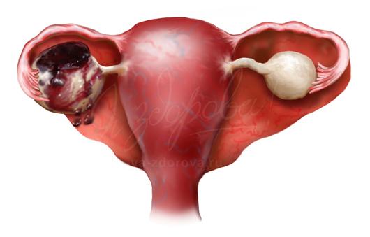 Эндометриоидная киста лечение без операции
