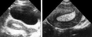 Простая гиперплазия эндометрия лечение