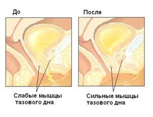 kogda-spermatozoidi-vihodyat-iz-chlena